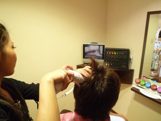 頭皮診断画像